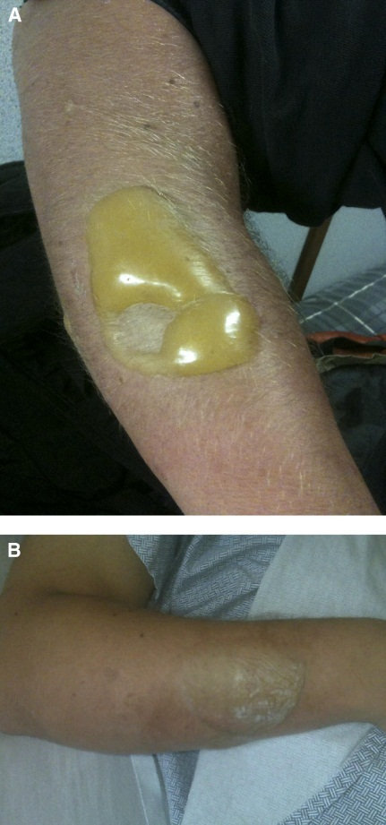 dermal injury due to sulfur mustard