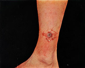 leg lesion caused by tularemia
